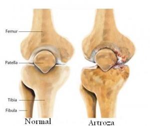 artroza la genunchi